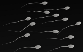 Graphic representation of swimming sperm - Forensic Context experts are specialists in sexual offences