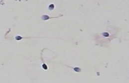Spermatozoa viewed under a microscope (x400 magnification)